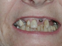 Harlingen dental implants before Burkholder
