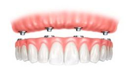 Nobel Biocare Teeth in a Day 4