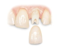 Harlingen dental Implant Crown