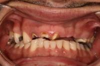 Missing and Broken teeth
