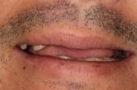 Broken and missing teeth pre op smile