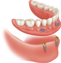 Harlingen dental implant denture
