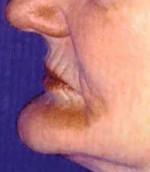 Missing teeth needing dental implants