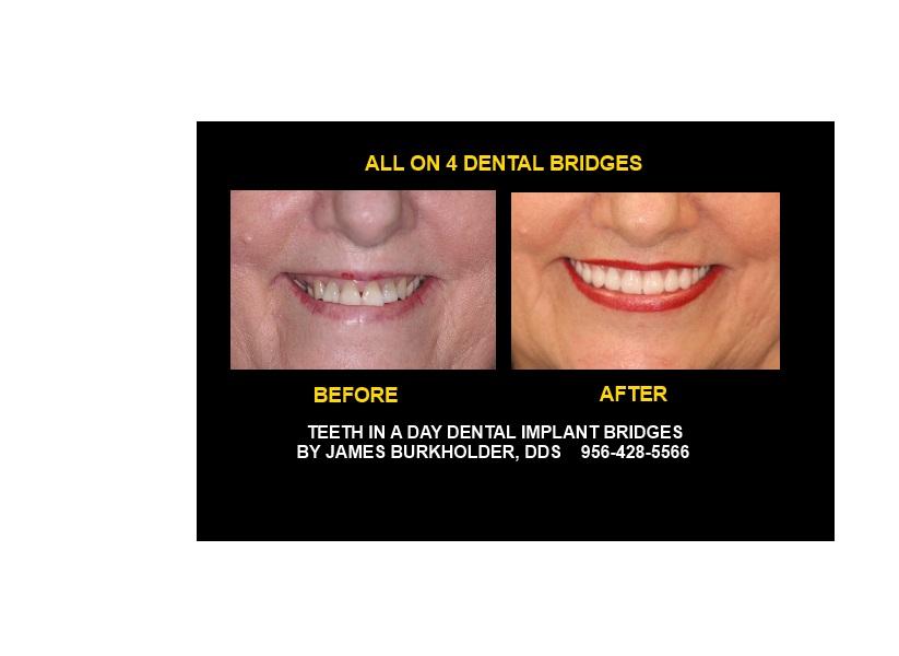 All on 4 dental implant bridge Jim Burkholder,DDS